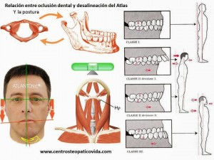oclusión dental y postura